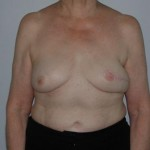 breast reconstruction surgeons