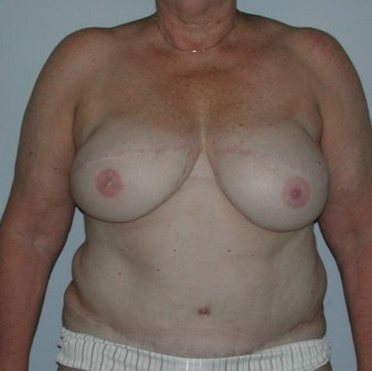 breast restoration