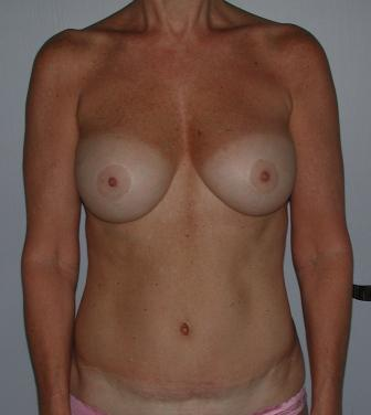 charleston breast surgeons
