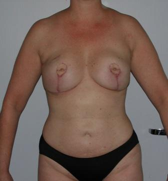 microsurgical breast reconstruction