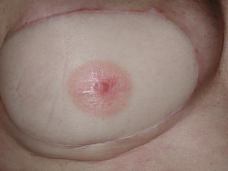 breast reconstruction tatto