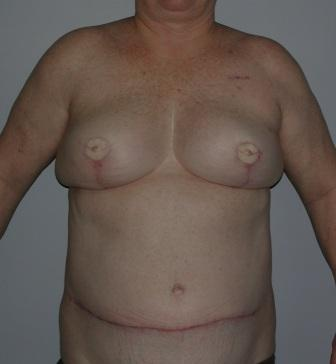 perforator flap breast reconstruction