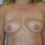 scarless mastectomy