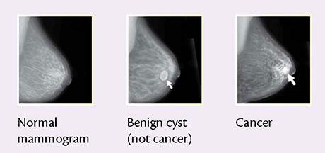 """<alt=""""Mammogram Film Images""""/>"""